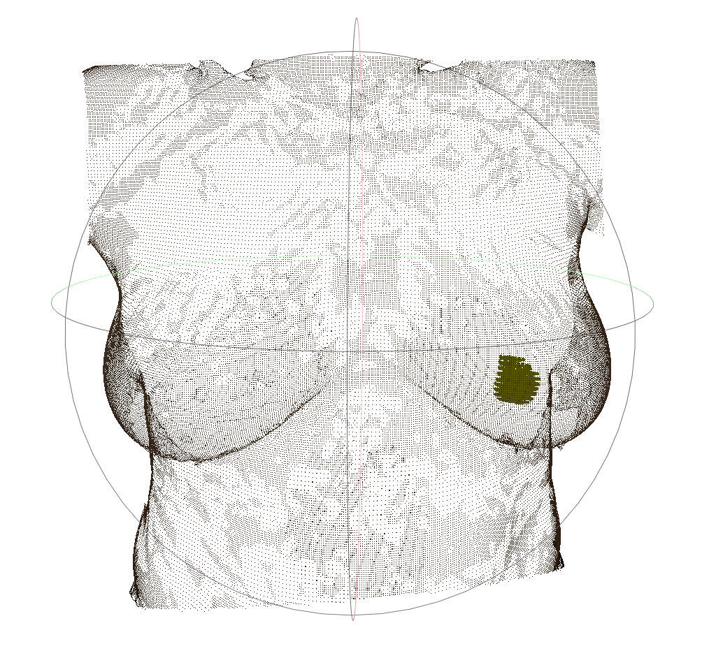 3D surface scan of the torso